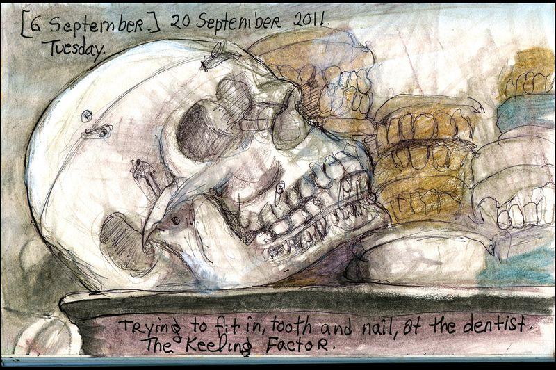September20_2011_brain_strain