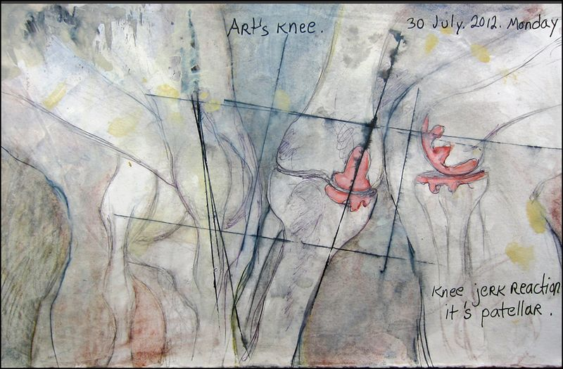 July30_2012_arts knee_part 2